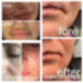 thumbnail 10.jpeg