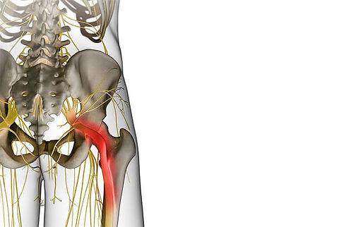 nerve pain.jpg