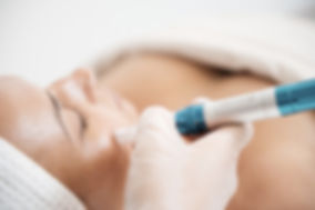 Collagen induction therapy, micro needling, derma rollering, scar reduction, pigmentation, skin needling, collagen,