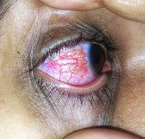 Conjunctivitis_disease.jpg