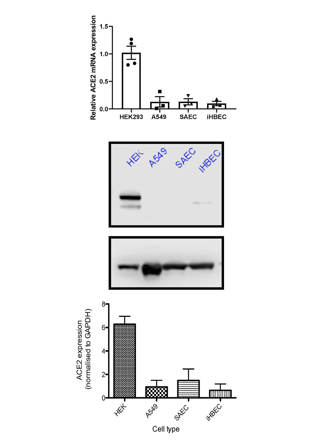 ACE2 Expression at Baseline in Epithelial Cells