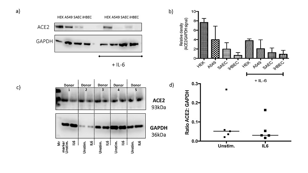 ACE2 Expression in response to IL6 stimulation in human lung cell lines, HEK293 cells and human precision cut lung slices (PCLS)