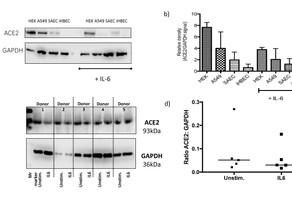 ACE2 Expression in response to IL6 stimulation in human lung cell lines, HEK293 cells & Human PCLS
