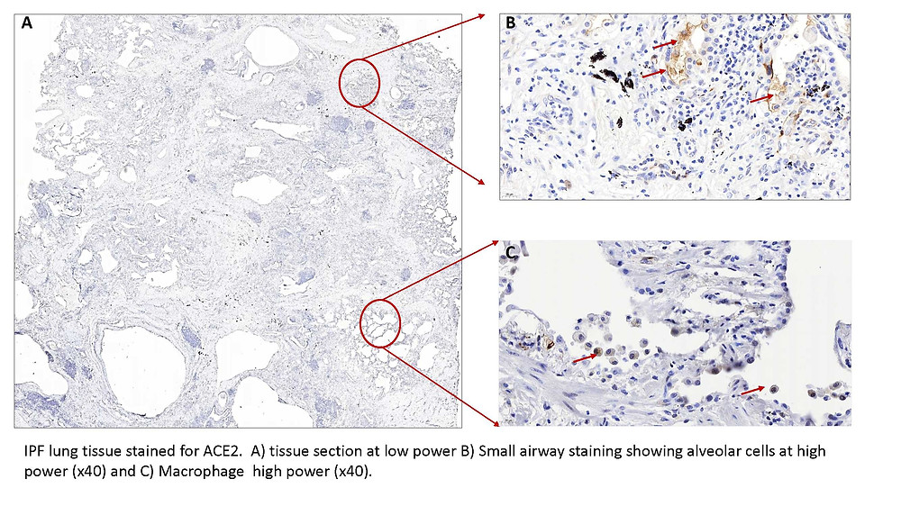 ACE2 expression in the lungs of people with idiopathic Pulmonary Fibrosis compared with control