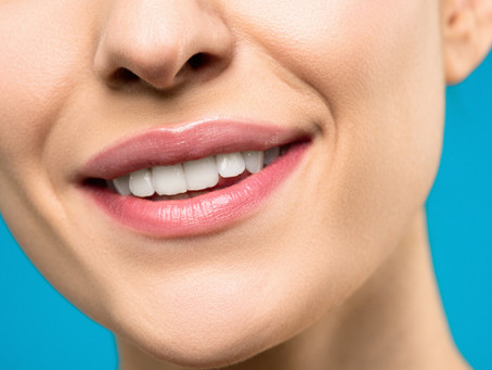 Safe Teeth Whitening Practices