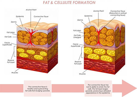 Fat-Cellulite-Large-1024x723.jpg