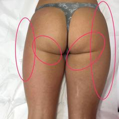 Left side is right after the treatment.   Right side is not treated and has a visualy larger wrinkle under the buttock and wider hip.