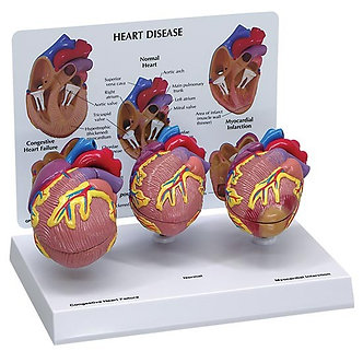 3-Mini heart set