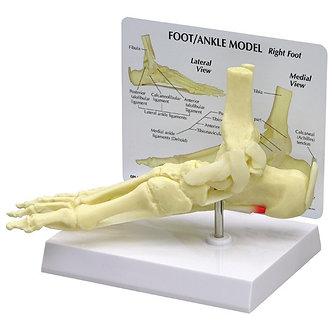 Foot/ankle plantar fasciitis