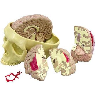 Modelo Crânio Com Cérebro