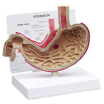 Stomach with ulcers