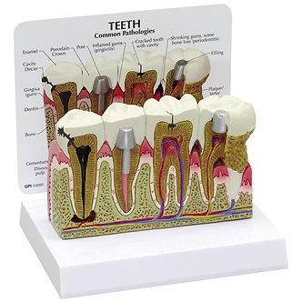 Modelo Dente