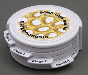 4pc Osteoporosis (hinged disk set)