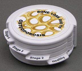 Modelo Osso Osteoporose Articulado
