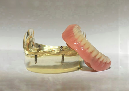 implant-retained-dentures.jpg