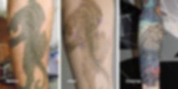 Tattoos, NeedleWurks, Tattoo Removal