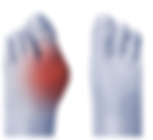 bunions.png