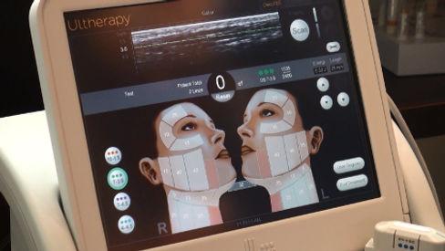 Ultrasound_Imaging_Ultherapy_Device_Web.jpg