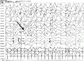 epilepsy_1497867139855.png