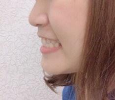 LINEフォト_撮影方法③.jpg