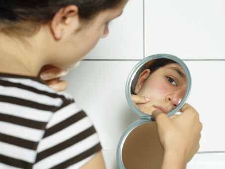 Addressing Acne