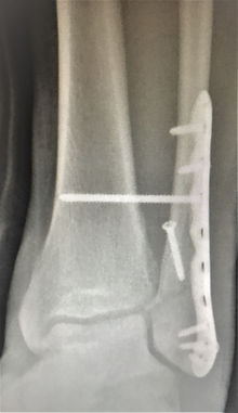 Healed ankle fracture from surgery