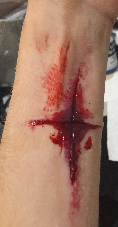 Silicone wound
