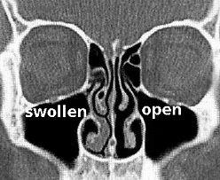 Nasal Cycle- picNostrilsMRI.jpg