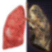 addicted lungs -1.JPG