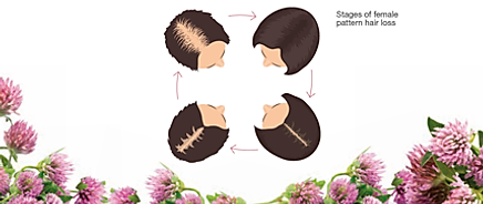Stages of female pattern hair loss