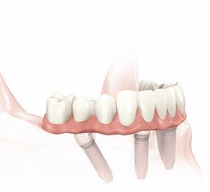 Fixed Denture on Multiple Implants