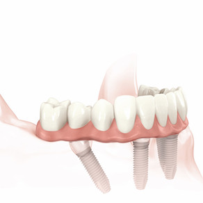 Benefits of All-On-4® Dental Implants: Effective Full-Arch Restoration.