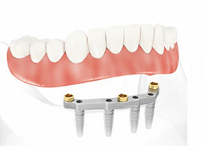 Removable Denture on Fixed Implant Bar
