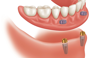 3D image of Implant Supported Dentures