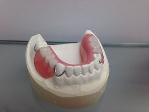 Acrylic Partial Denture