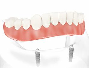 Removable Denture on Implants
