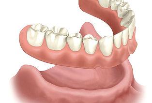 3D Image of Standard Dentures