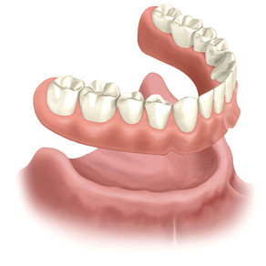 Signs Your Dentures May Need To Be Replaced