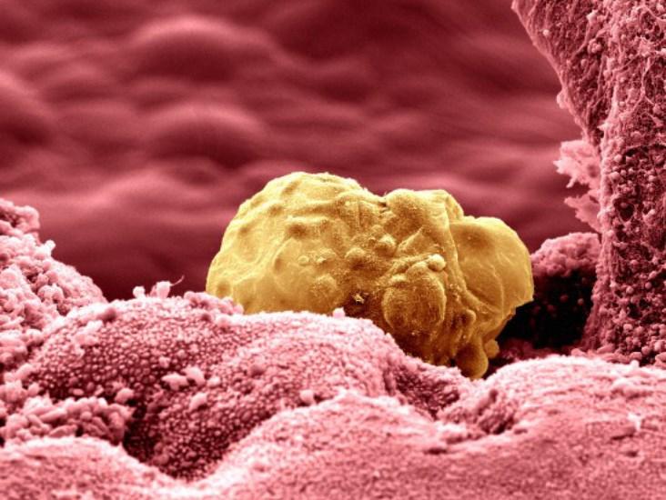 Transferência Embrionária