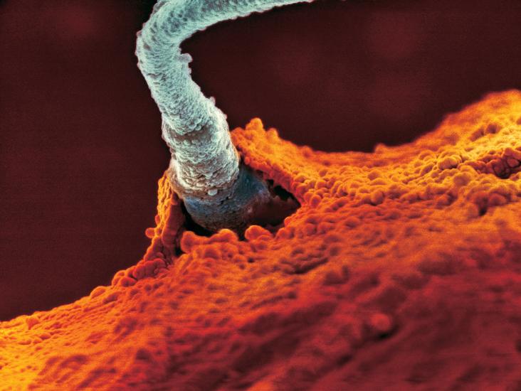 Injeção de Espermatozóide