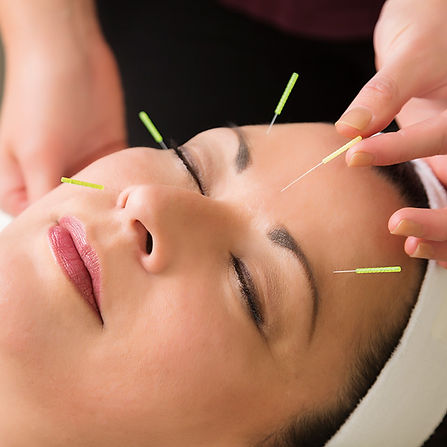 facialacupuncture2.jpg