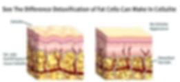 detox%20and%20cellulite_edited.jpg