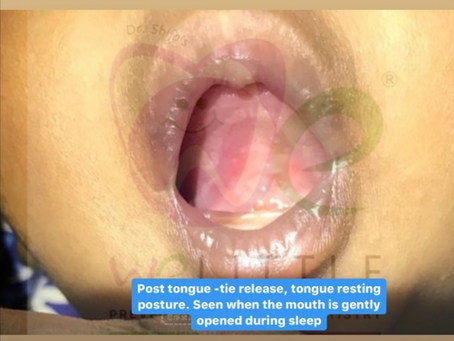 THE TONGUE TIE RELEASE