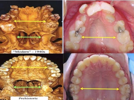 We Can Prevent Developing Crooked Teeth At The Earliest. Is It Necessary To Wait Till 14 To Straight