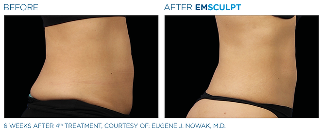 EmsculptBa-card-female-abdomen.png