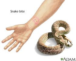 How to survive a SNAKE BITE? (first aid treatment)
