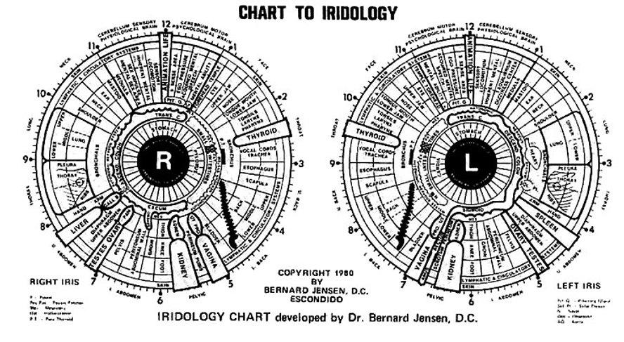 iridology_chart_big.jpg