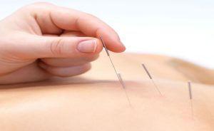 T BIO acupuncture-needle-300x184-300x184