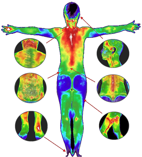 THERMOGRAPHY Full Body.png