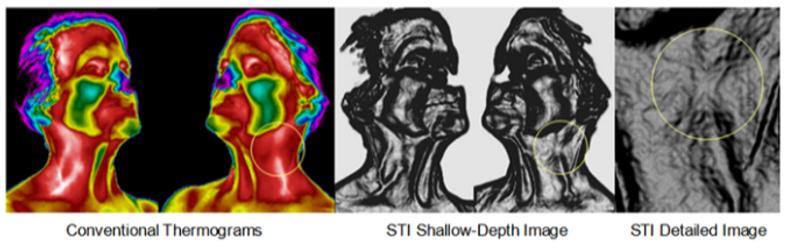 STI Carotoid comparison.png